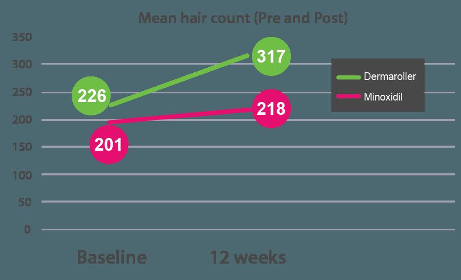 Grafico risultati uso di dermroller e minoxidil