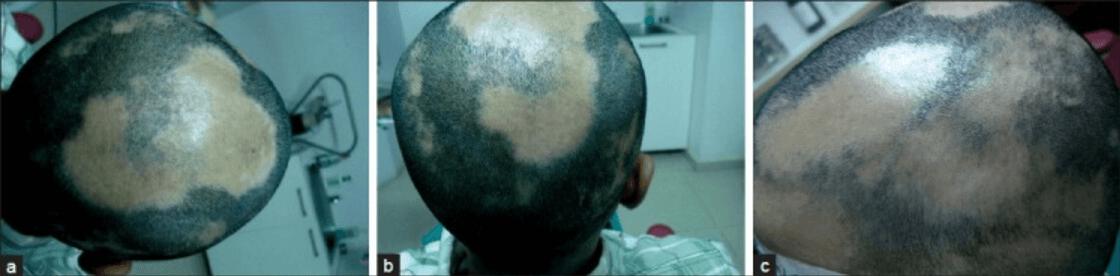 Immagine alopecia areata