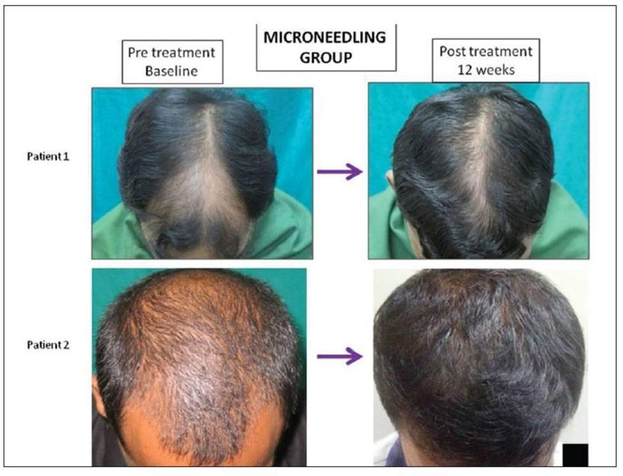 Foto pre e post trattamento con dermaroller